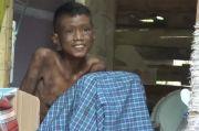 Viral, Pria Penderita Kelainan Kulit yang Dikucilkan Dikunjungi Gubernur Sulbar