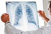 Kanker Paru Masih Jadi Masalah Utama Kesehatan di Dunia