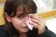 Pemukim Israel Serang Gadis Cilik Palestina hingga Matanya Berdarah