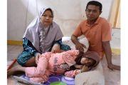 Nestapa Caca Gadis Cilik asal Ligung Majalengka, Ada Tumor Besar di Perutnya