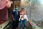 Bayi Kembar Siam di Lombok Timur Ini Butuh Uluran Tangan Demi Operasi Pemisahan