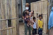 Pemda Siap Biayai Rp2,5 Miliar untuk Operasi Bayi Kembar Siam Inaya-Anaya