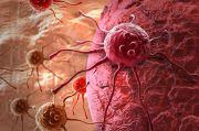 Bagaimana Protokol Pengobatan Pasien Kanker Payudara Selama Pandemi?