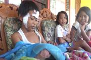 Bocah Korban Ledakan Bercita-cita Ingin Jadi Tentara