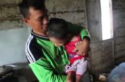 Derita Chika, Gadis 8 Tahun yang Tubuhnya Tak Bisa Digerakkan