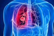 Deteksi Yuk, Empat Gejala Kanker Paru yang Sering Diabaikan