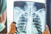 Waspadai Pneumonia pada Lansia, Ingat 4 Langkah Pencegahannya