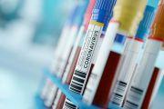 Sistem Pendeteksi Perkembangan Covid-19 pada Pasien
