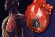 Ini Penyebab Bermain Bola Berisiko Tinggi Kena Serangan Jantung