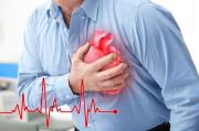 Cegah Serangan Jantung Saat Main Bola, ini Saran Dokter