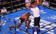 Lolos dari Kebutaan, Dokter Mata Bela Mike Tyson Baru Stop Duel