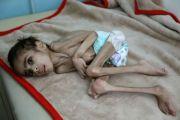 Dilanda Kelaparan, Bocah Yaman Umur 7 Tahun Hanya Berbobot 7 kg