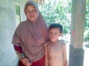 Perjuangan Bocah 11 Tahun di Pangandaran Hidup dengan Kondisi Jantung Bocor