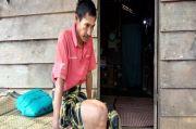 Memilukan, Petani Kopi Ini Lumpuh Setelah Kakinya Diserang Tumor Ganas