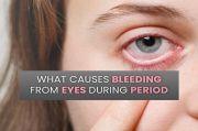 Idap Ocular Vicarious Menstruation, Wanita Ini Alami Pendarahan dari Mata Ketika Menstruasi