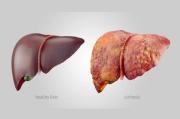 Jaga Kesehatan Organ Hati, Lakukan Deteksi Dini dan Kenali Gejalanya