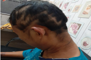 Sadis, Suami di Banyuasin Masukkan Cobek ke Kemaluan Istri, Lalu Tubuhnya Disiram Sambal