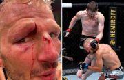 Alis Mata Petarung UFC Ini Terbelah Dihantam Lutut Seterunya