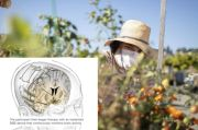 Ilmuwan Tanam Implan Otak Listrik untuk Menyembuhkan Penderita Depresi