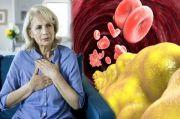 Kolesterol Tinggi, Sakit Punggung dan Nyeri di Sisi Kiri Dada Tak Boleh Diabaikan