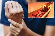 Gejala Kolesterol Tinggi di Tangan dan Kaki yang Perlu Segera Diobati