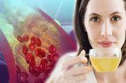 Kolesterol Tinggi Turun dalam 30 Menit dengan Minum Teh Hijau
