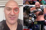 Makna Pesan Spesial Tyson Fury di Hari Ulang Tahun Deontay Wilder