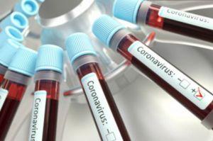 Rapid Test Peserta-Panitia UTBK SBMPTN di Unpad, 5 Orang Reaktif