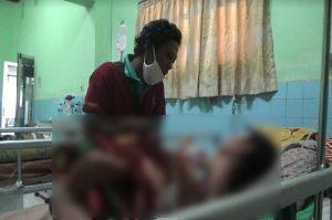 Duaar... Tangan Bocah di Probolinggo Diamputasi Usai Kena Ledakan