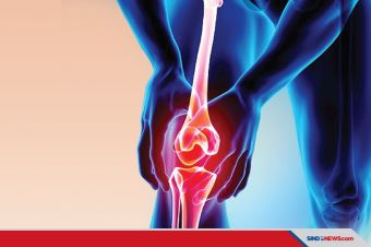 Mantap, Osteoartritis Bisa Diprediksi oleh Kecanggihan Kecerdasan Buatan