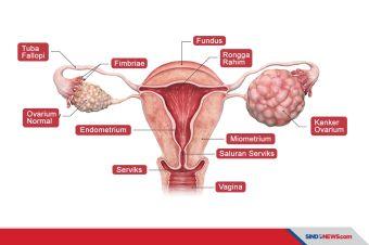Apa Saja Penyebab dan Faktor Risiko Kanker Ovarium?