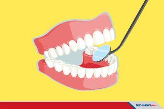 Saat Pandemi Covid-19, Perawatan Gigi Bisa 2 Tahun Sekali Kok