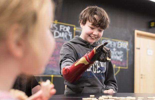 Tangan Bionic Bergerak Layaknya Tangan Sungguhan