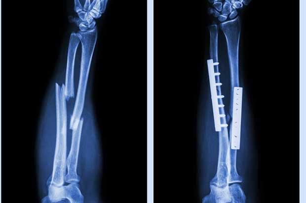 Inggris Kembangkan Implan Logam 3D untuk Gantikan Tulang Rusak