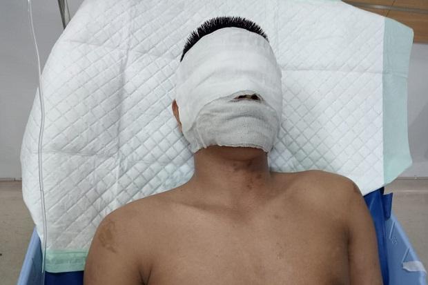 Medan Gempar, Wajah Pimred Media Online Disiram Air Keras Oleh 2 OTK hingga Bengkak