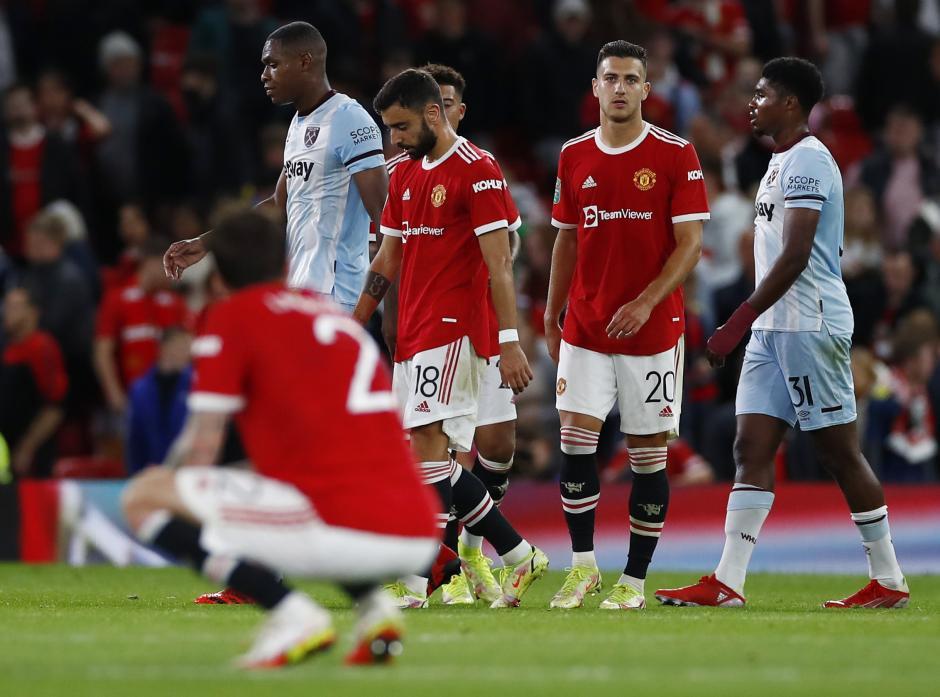 Begini Ekspresi Kekecewaan Pemain MU Usai Tersingkir dari Piala Liga Inggris-2